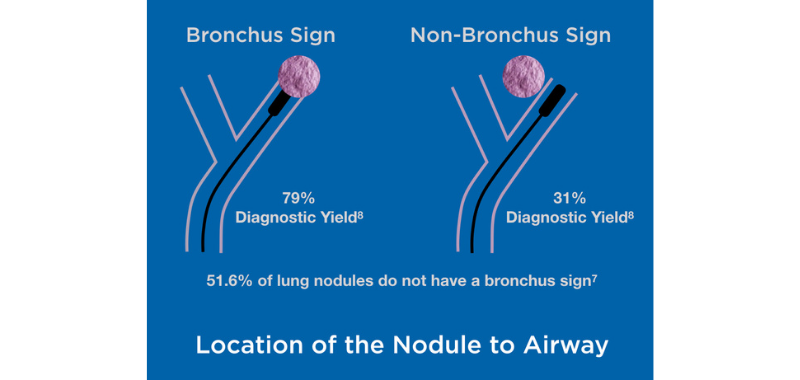 Bronchus Sign.png