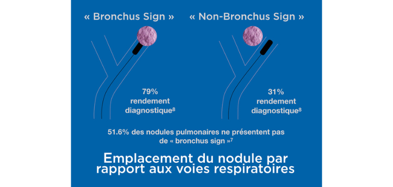 Bronchus sign FR.png